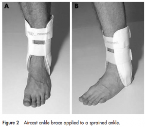 Aircast ankle brace applied to a sprained ankle.