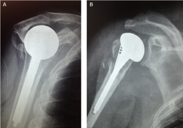 Intrathoracic fracture-dislocation of the humerus – case report